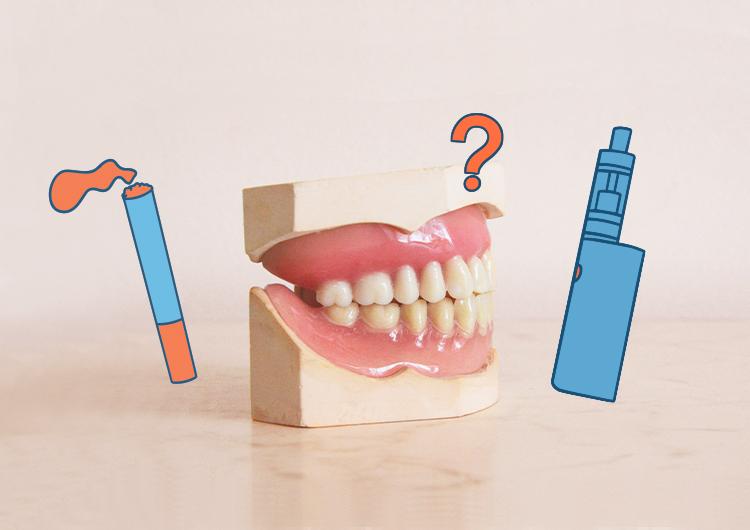 La-vape-et-la-santé-bucco-dentaire